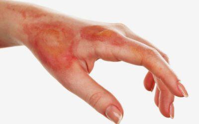 ¿Cómo curar una quemadura?