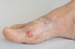 Tipos de heridas en la piel